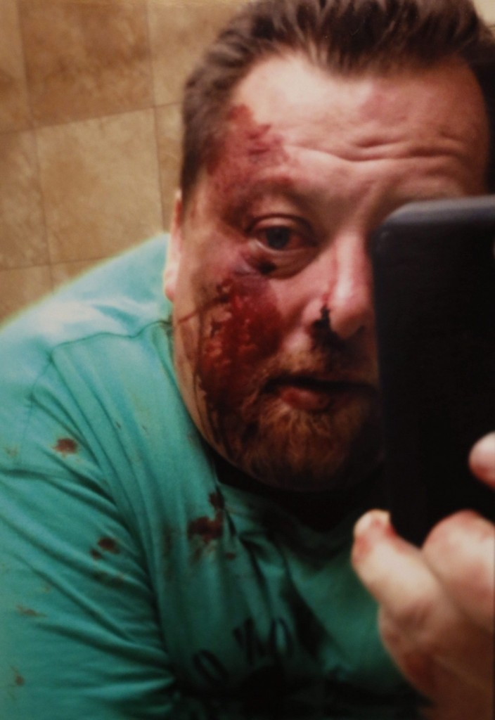 Picture of Christopher J. Kozak after his beating by Buffalo Police.