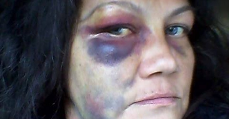 winnepeg cops beat woman