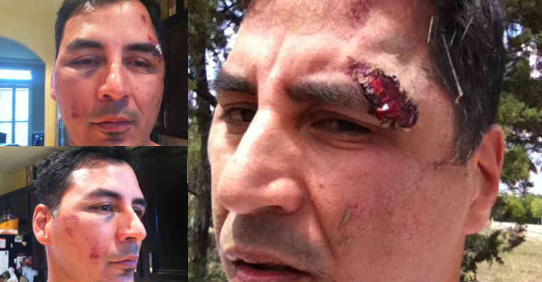 If Civilians Beat an Innocent Man like these Cops Did, They'd Be In Jail. Instead the Cops Stay Cops