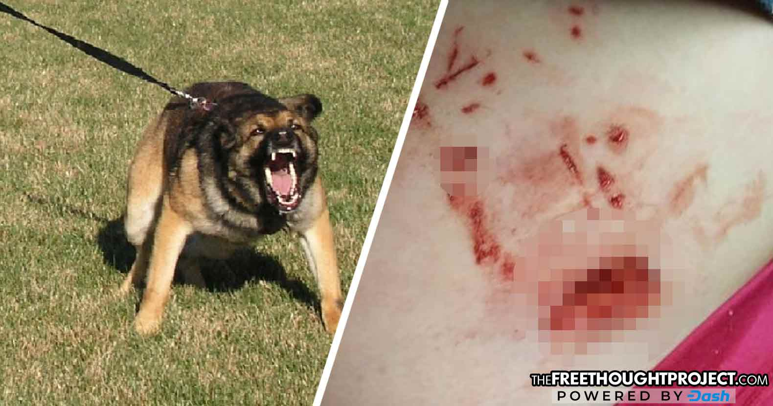 Police K9 Attacks, Seriously Injures 6-Year-old Girl as Witnesses Contradict Cop's Story